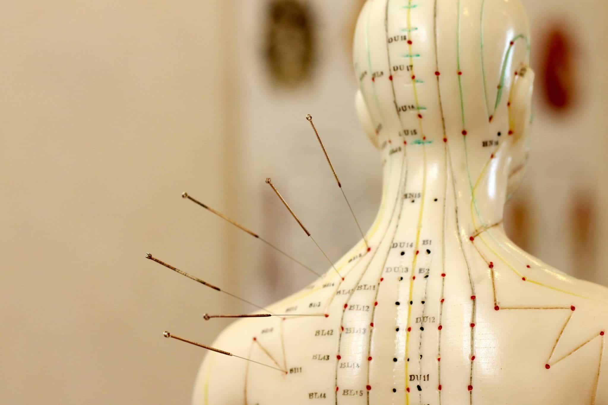 Akupunktur: Deri ile deri altı kas dokusuna uygulama