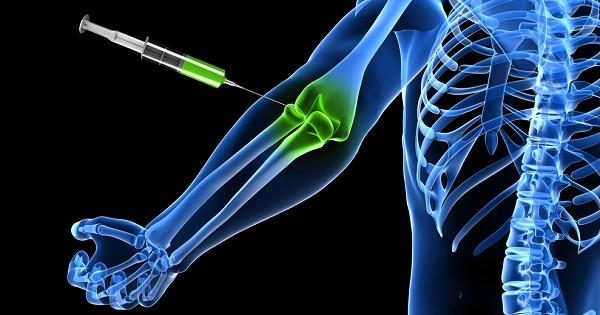 Proloterapi ile eklem ağrıları nasıl tedavi edilir?